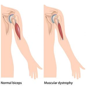 کاردرمانی در دیستروفی عضلانی